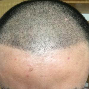 伪善-植发术后第7天图片