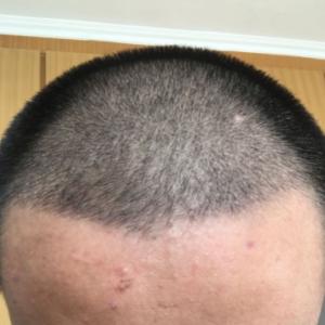 伪善-植发术后第14天图片