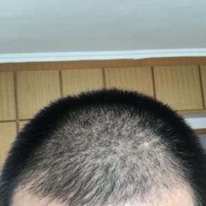 伪善-植发术后第31天图片