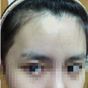 小闹心-植发术后第16天图片