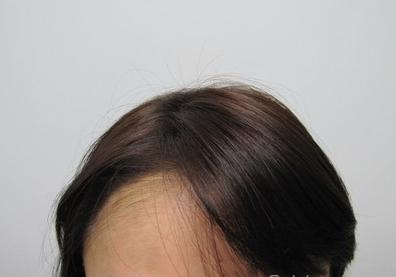 巴扎嘿-植发术后第186天图片