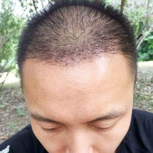 别妄想泡老子-植发术后第35天图片
