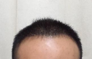 三月的鬼雨-植发术后第245天图片