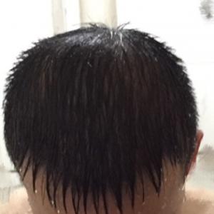 三月的鬼雨-植发术后第336天图片