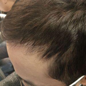 枪打天下-植发术后第3月图片