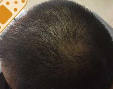 囿妳蕞緈幅-植发术后第55天图片