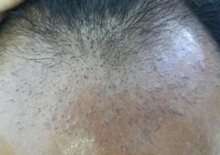 轻嗅风中血-植发术后第42天图片