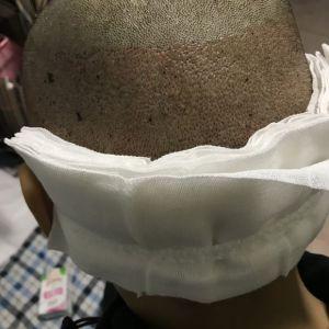 咬遍天下无敌手-植发术后第1天图片