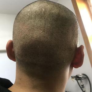 咬遍天下无敌手-植发术后第2天图片