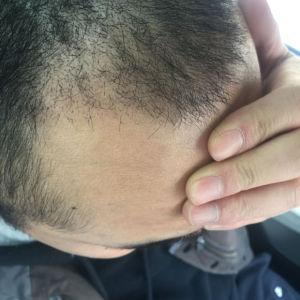 咬遍天下无敌手-植发术后第12天图片