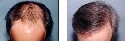 导致头顶头发稀少的原因有哪些?这些因素不能忽视