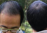 头发稀少的主要原因是什么?脱发的病因有哪些?