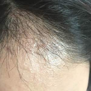 不喜主动-植发术后第1月图片
