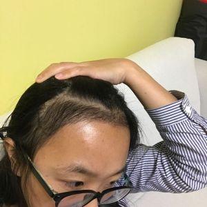 少女信箱-植发术后第1月图片