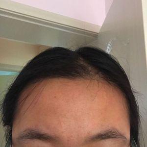 少女信箱-植发术后第2月图片