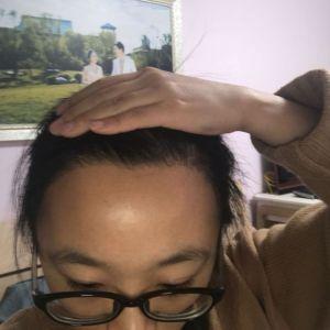 少女信箱-植发术后第3月图片