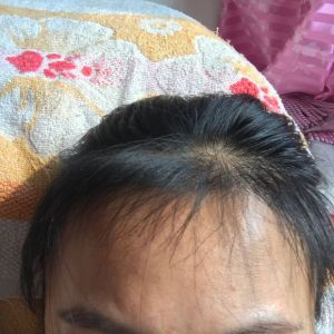 少女信箱-植发术后第4月图片