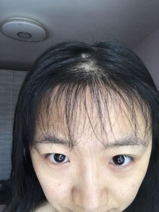 少女信箱-植发术后第5月图片