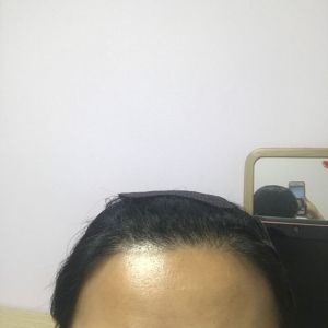 少女信箱-植发术后第6月图片