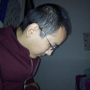 我瞎不见光-植发术后第2月图片
