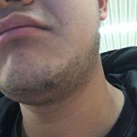 种植胡须用户图片