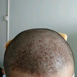 心疤-植发术后第1天图片