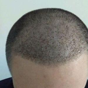 心疤-植发术后第6天图片