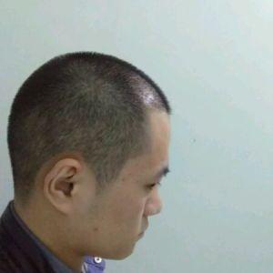 心疤-植发术后第1月图片