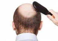 掉头发是怎么回事?人为什么会掉头发呢?