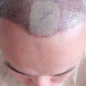心罪-植发术后第2天图片