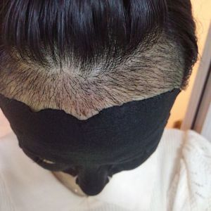 玖若兮-植发术后第16天图片