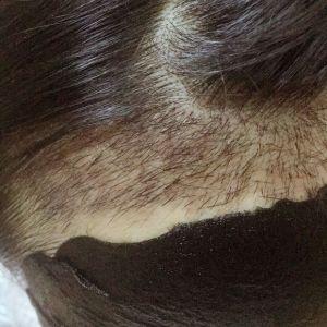 玖若兮-植发术后第17天图片