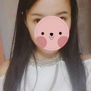玖若兮-植发术后第19天图片