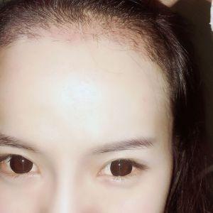 玖若兮-植发术后第22天图片
