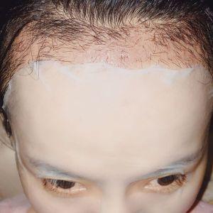 玖若兮-植发术后第29天图片