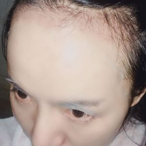玖若兮-植发术后第1月图片