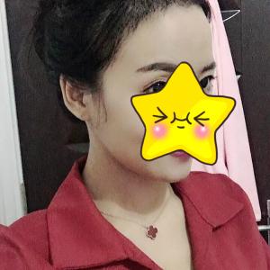 玖若兮-植发术后第3月图片
