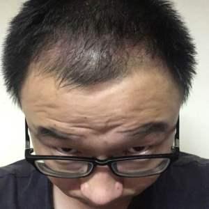 焚心-植发术后第2月图片