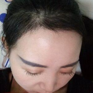 眉目艳新月-植发术后第3月图片