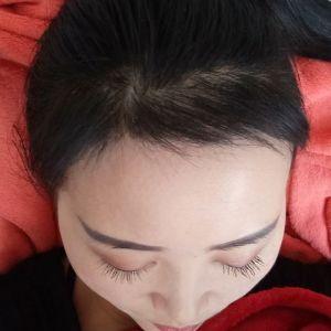 眉目艳新月-植发术后第4月图片