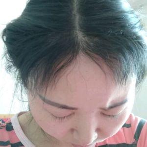 眉目艳新月-植发术后第6月图片
