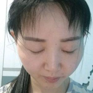 眉目艳新月-植发术后第7月图片
