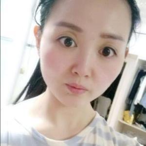 眉目艳新月-植发术后第1年图片