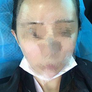 智商已更新-植发术后第6天图片