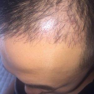 心太野-植发术后第3月图片