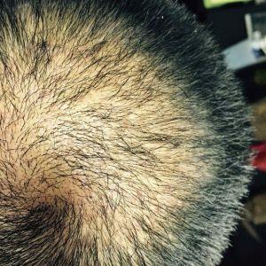 离心咒-植发术后第1月图片