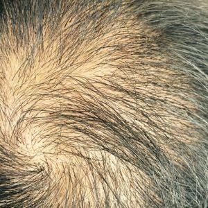 离心咒-植发术后第123天图片