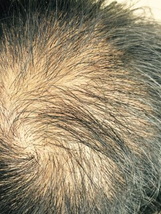 离心咒-植发术后第4月图片