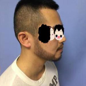 醉人心-植发术后第8月图片