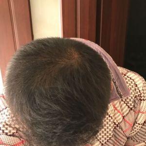 暖心话-植发术后第215天图片